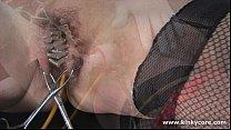 Catheter and labia needles