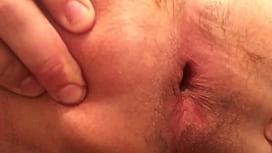 Gaping asshole up close