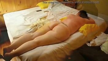 Bubble Butt Mom Needs A Gentle Massage After Sun Burn
