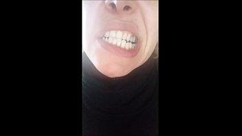 beautiful face, but rotten teeth!