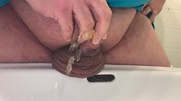 Pissing hypospadias penis
