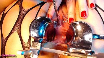 AdalynnX - Sounding My Cervix and Peehole