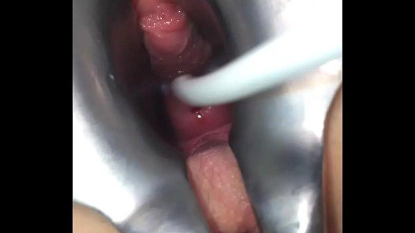 Cervix piercing