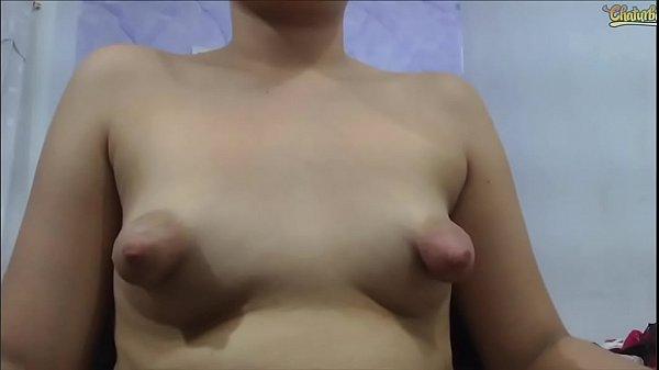 Puffy nipples sag