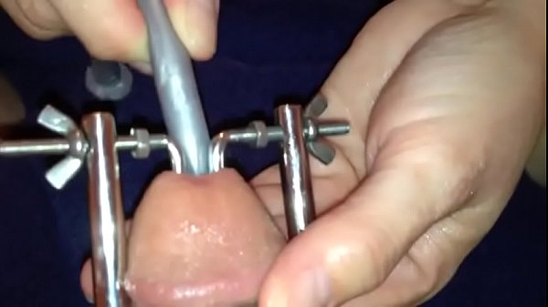 Peehole Stretcher and Silicone Nail