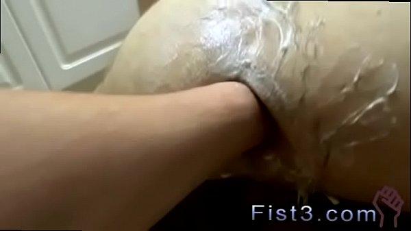 Anal rash with anus petruding