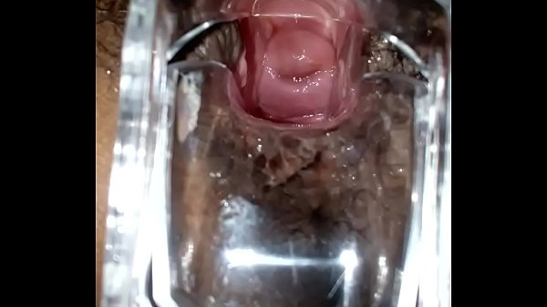 SLIM INDIAN BROWN GIRL CERVIX SPECULUM CHECK VAGINAL OPENING