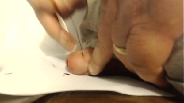 Large Pin through cockhead - b. gushes when extracted
