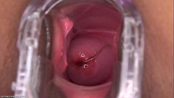 Skin Diamond Ho Tail Room Cervix 1080