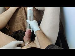 Time lapse penis pump